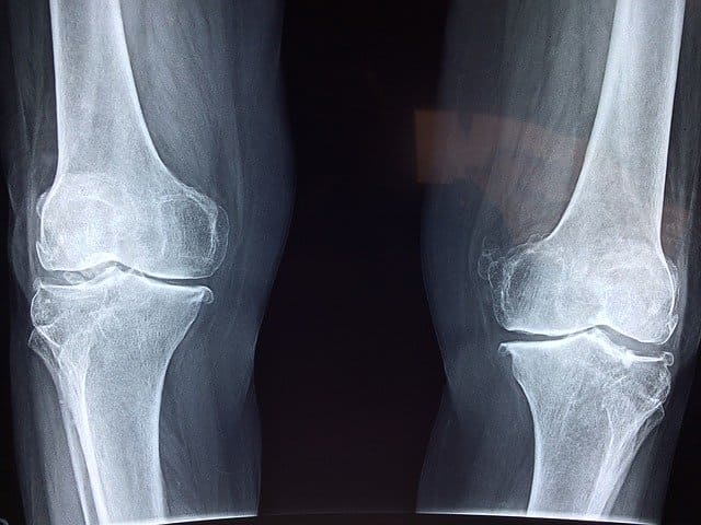 acido hialuronico en la rodilla